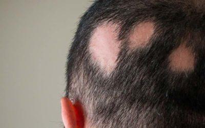 Mikrohaarpigmentierung bei kreisrundem Haarausfall